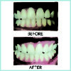 before-and-after-2-ap-24-_whitening-flouride_-toothpaste_-_quarterly_affair_720-01