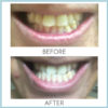 before-and-after-2-ap-24-_whitening-flouride_-toothpaste_-_quarterly_affair_720